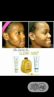 Acne Treatment Pack | Skin Care for sale in Lagos State, Ikeja